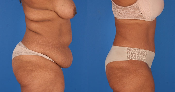 Tummy Tuck Liposuction