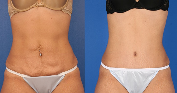 Kennesaw Tummy Tuck