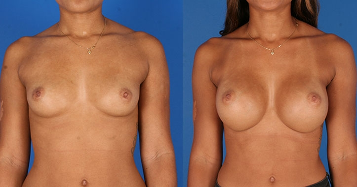Breast Augmentation 6523