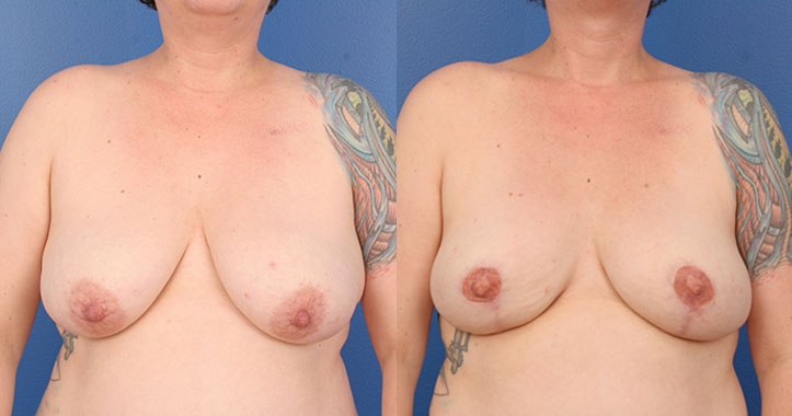 Atlanta DIEP Flap Breast Reconstruction 4289 AP