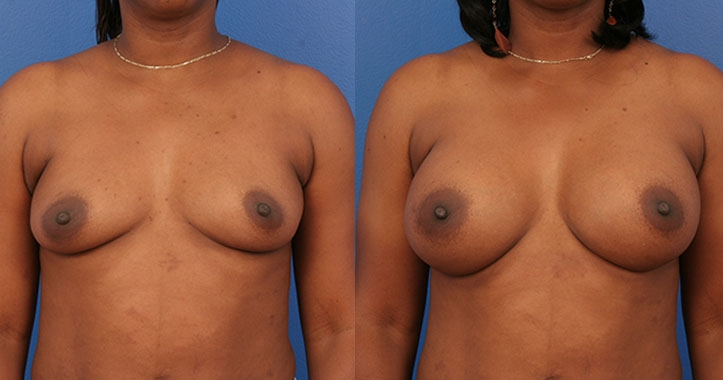 Marietta Breast Augmentation 4310 AP