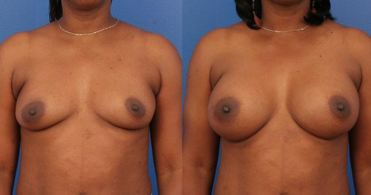 Marietta Breast Augmentation 4310 AP