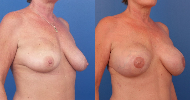 Breast-Reconstr-2116