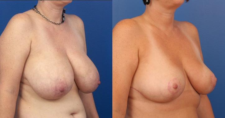 Breast-Reduction-Marietta