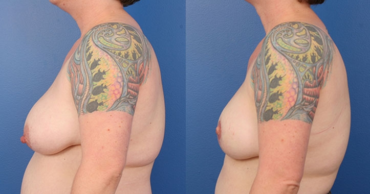 Atlanta DIEP Flap Breast Reconstruction 4289 Left Lateral
