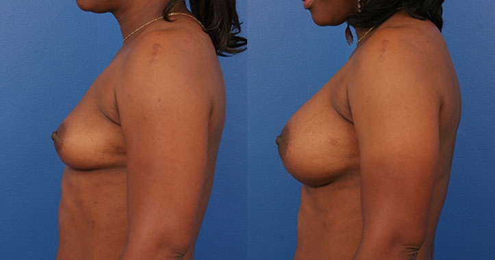 Marietta Breast Augmentation 4310 Left Lateral