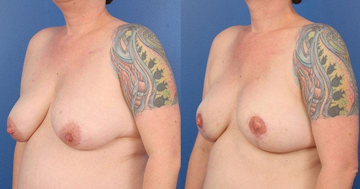 Atlanta DIEP Flap Breast Reconstruction 4289 Left Quarter