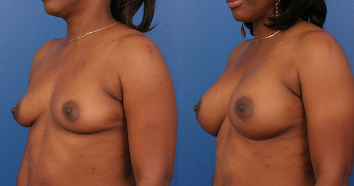 Marietta Breast Augmentation 4310 Left Quarter