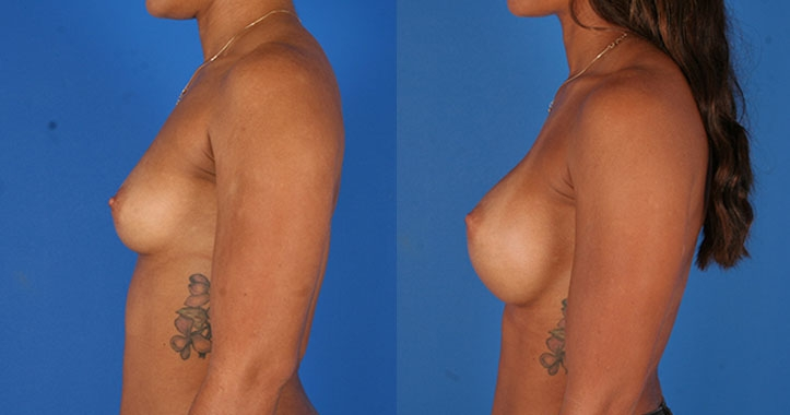 Kennesaw Breast Augmentation 6523