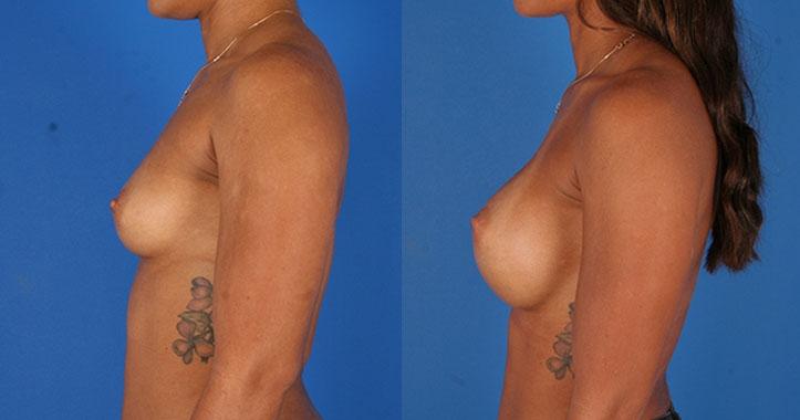 Kennesaw Breast Augmentation 6523
