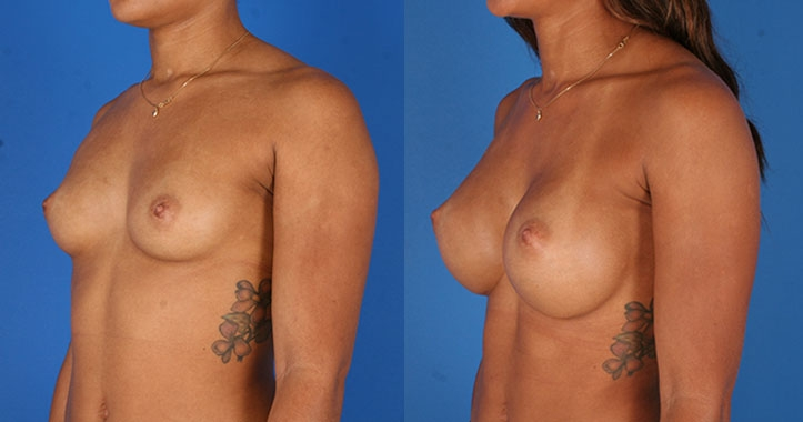 Atlanta Breast Augmentation 6523
