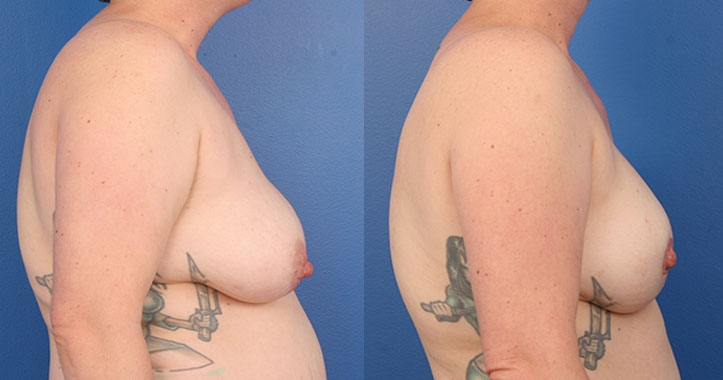 Atlanta DIEP Flap Breast Reconstruction 4289 Right Lateral