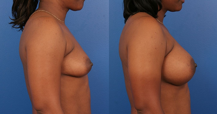 Marietta Breast Augmentation 4310 Right Lateral