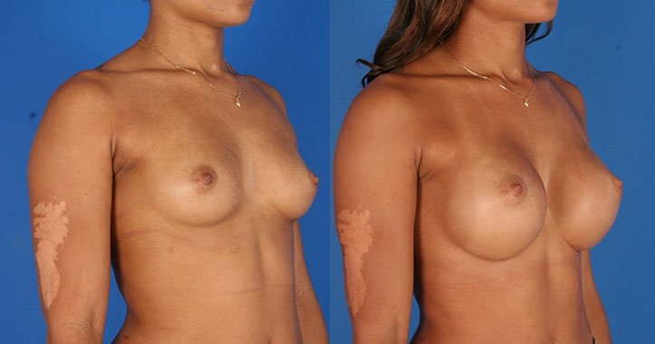 Marietta Breast Augmentation 6523