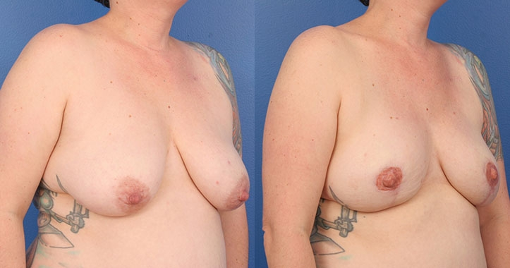 Atlanta DIEP Flap Breast Reconstruction 4289 Right Quarter