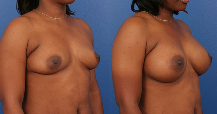 Marietta Breast Augmentation 4310 Right Quarter