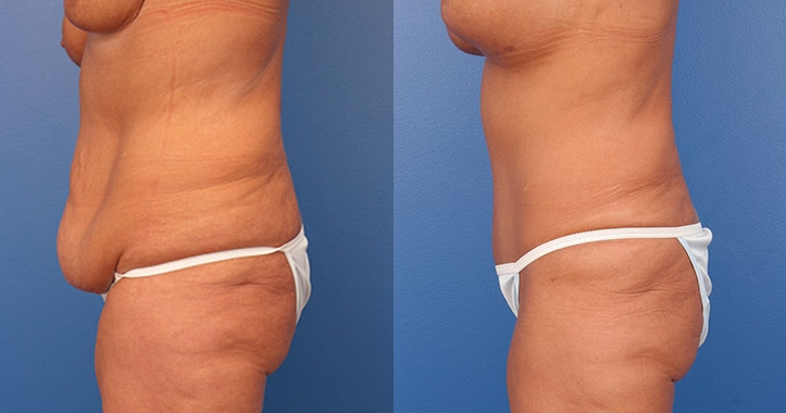 Tummy Tuck Left Lateral