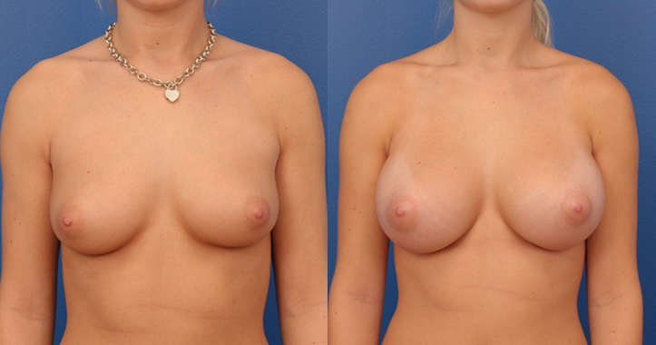 breast augmentation atlanta view 1
