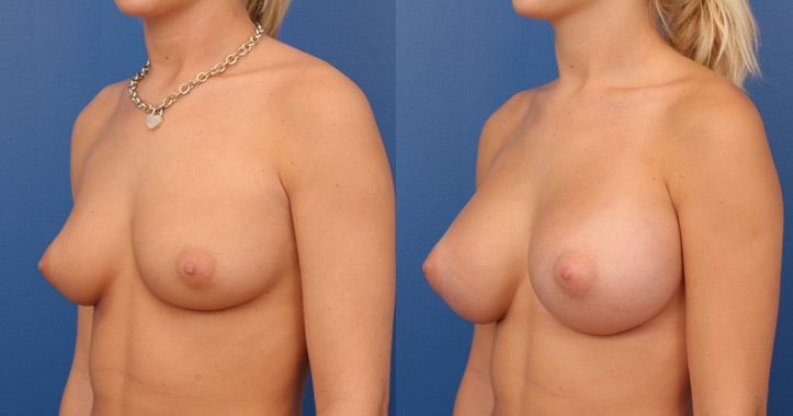 breast augmentation atlanta view 2