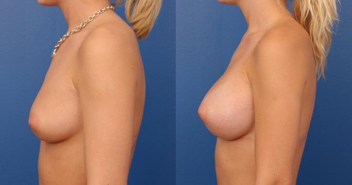 breast augmentation atlanta view 3
