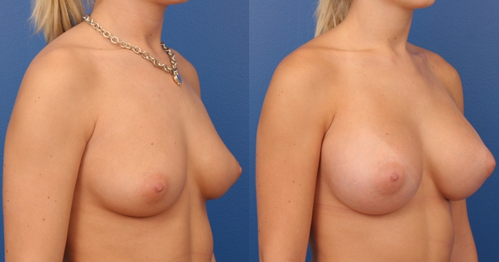 breast augmentation atlanta view 4