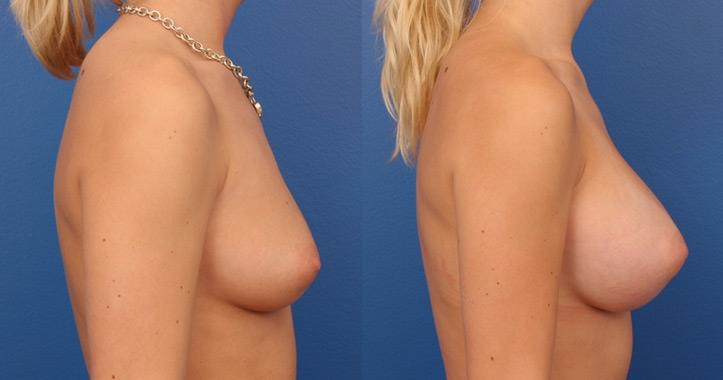 breast augmentation atlanta view 5
