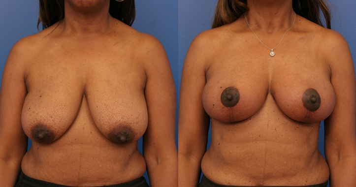 Breast Lift Marietta Frontal