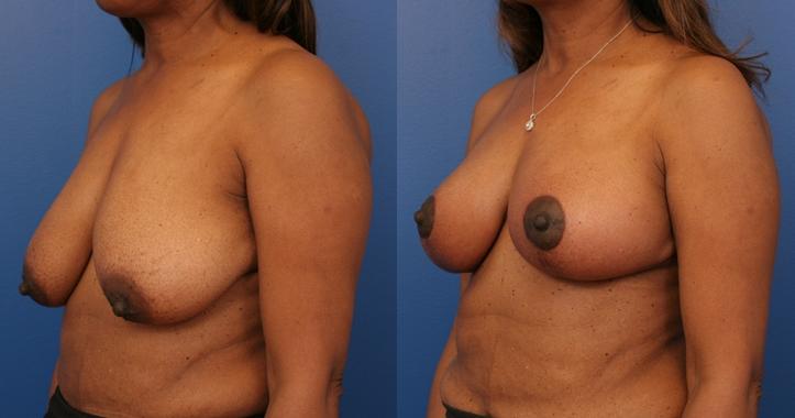 Breast Lift Marietta lt 3/4 view