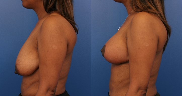 Breast Lift Marietta lt Profile View