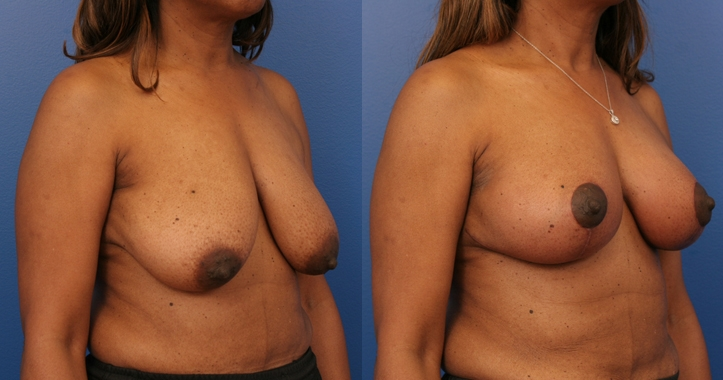Breast Lift Marietta rt 3/4 view