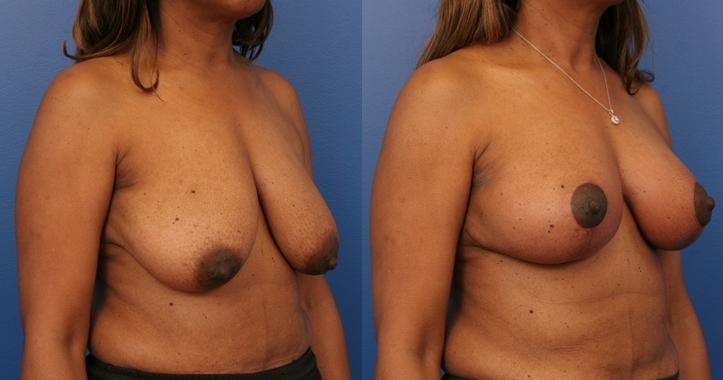 Breast Lift Marietta rt 3/4 view