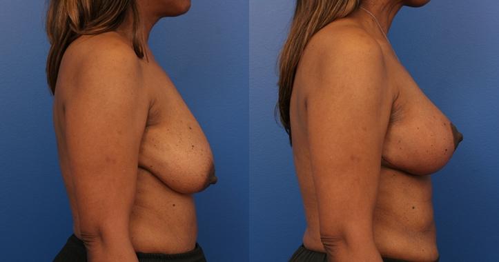 Breast Lift Marietta rt Profile View