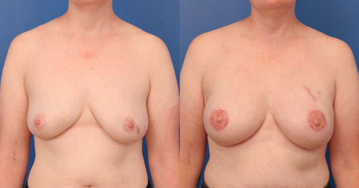 Breast Reconstruction Atlanta - Frontal View