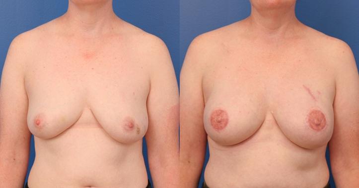 Breast Reconstruction Atlanta - Frontal View