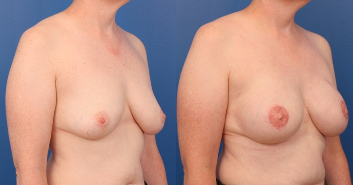 Breast Reconstruction Atlanta - rt 3/4 View