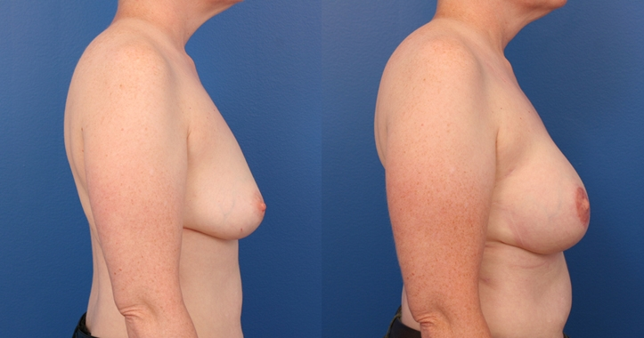 Breast Reconstruction Atlanta - rt Profile View