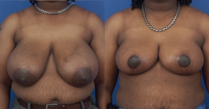 Breast Reduction Atlanta - Frontal View