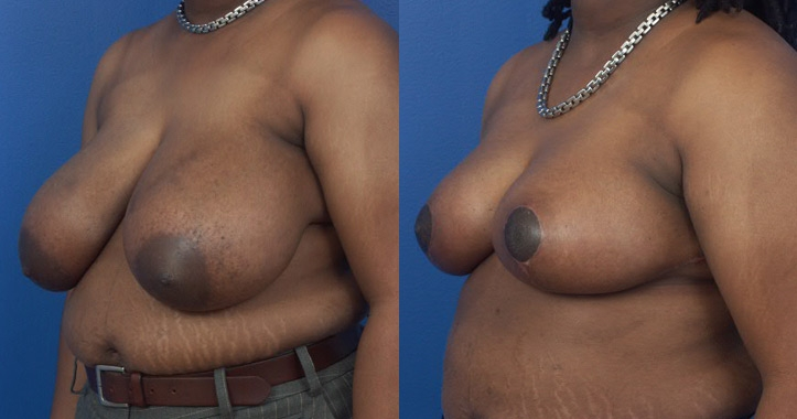 Breast Reduction Atlanta - Left 3/4 View