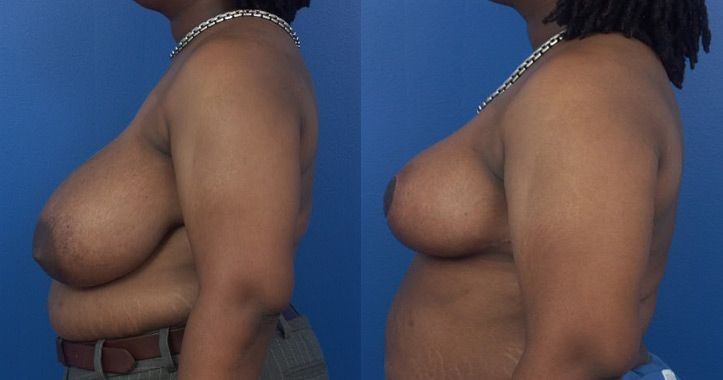 Breast Reduction Atlanta - Left Profile View