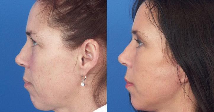 Eyelid-Surgery-Marietta-1