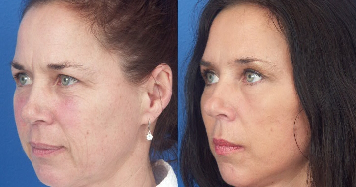 eyelid-surgery-marietta-2
