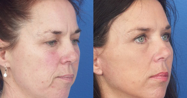eyelid-surgery-marietta-4