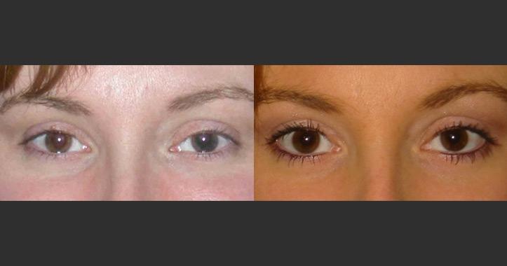 Eyeliner Permanent Makeup Marietta