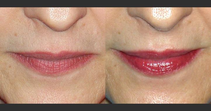 Full Lip Color Permanent Makeup Marietta