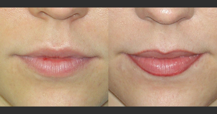 Lip Liner Permanent Makeup Marietta