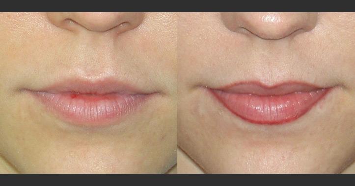 Lip Liner Permanent Makeup Marietta