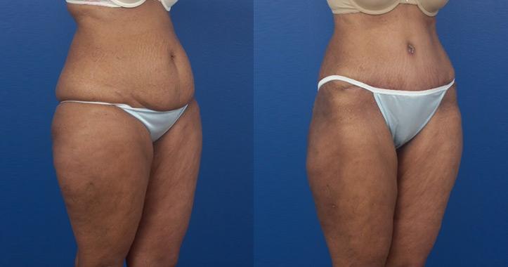 Liposuction Marietta 2