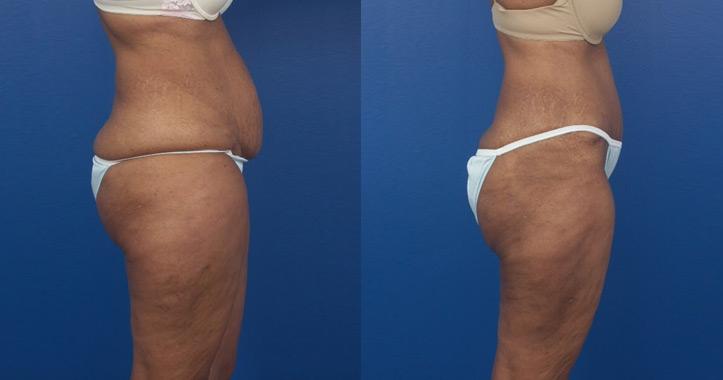 Liposuction Marietta 3