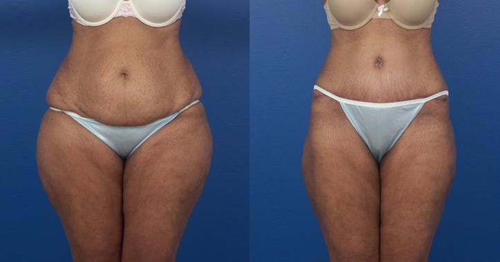 Liposuction Marietta