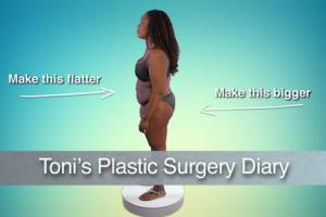Tummy tuck and Brazilian Butt Lift on Atlanta Plastic - Dr. Crawford